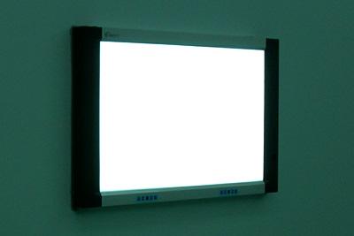 其他厂家观片灯观察屏分布不均